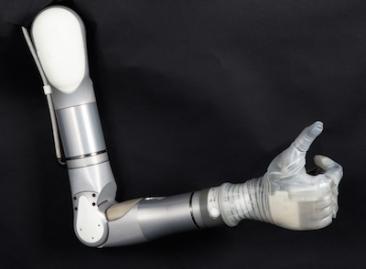 Mobius_Bionics_LUKE_Arm_400-867e63ff